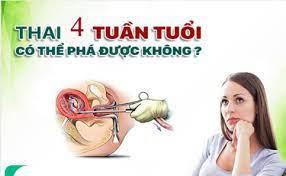 Phá thai 4 tuần tuổi bằng phương pháp nào an toàn